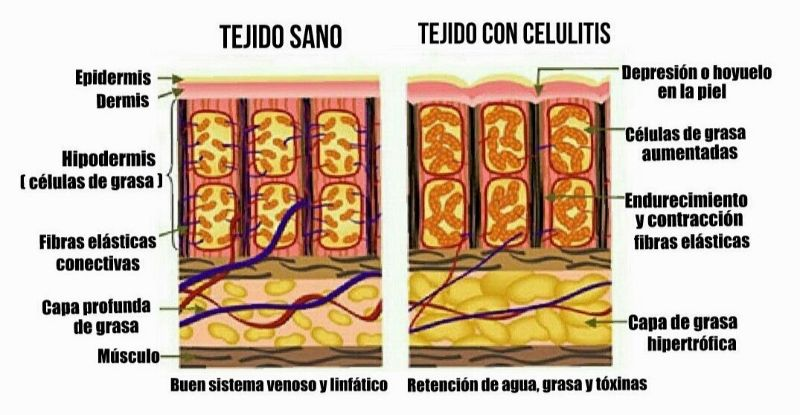 la realidad de la celulitis