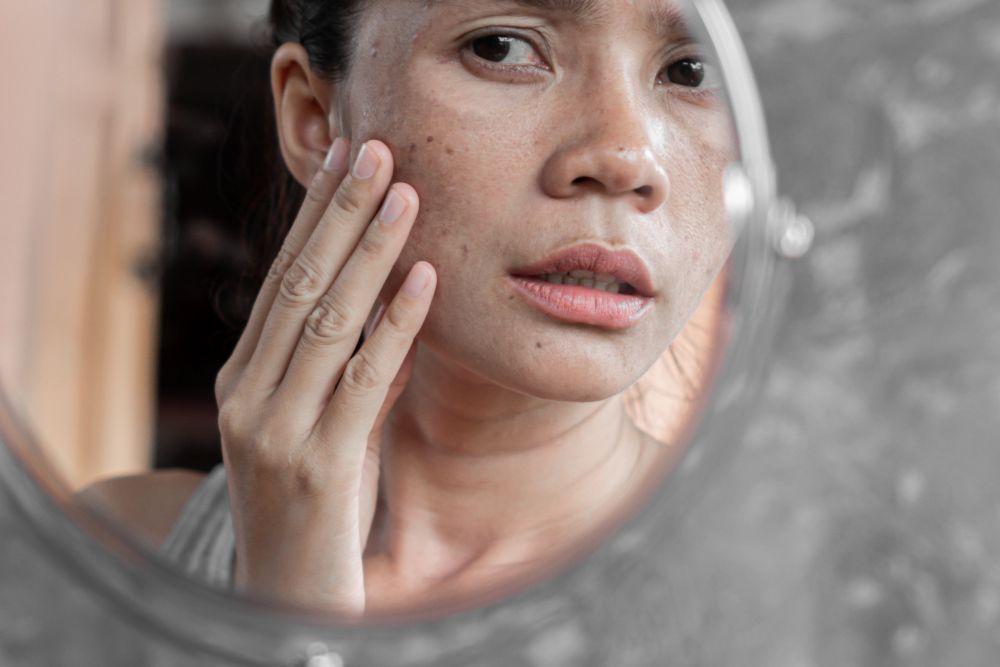 hiperpigmentación de la piel_1
